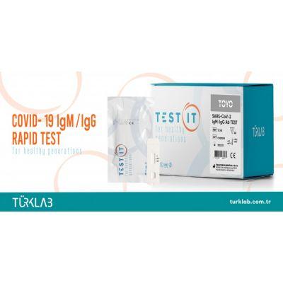 SARS-COV-2 IGM/IGG AB TEST